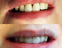 Old, failing, unaesthetic upper front crown removed and replaced with dental implants and new, aesthetic crowns
